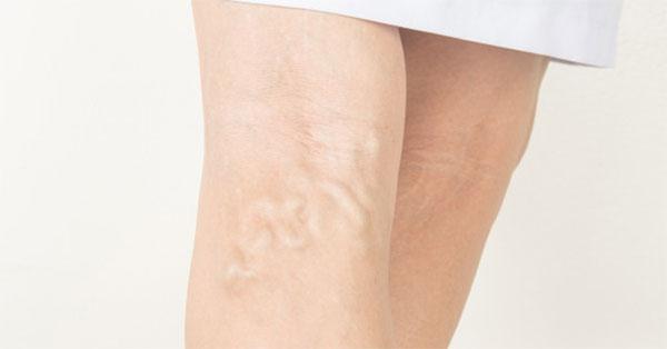 hirudoterápia a lábak varikózisának stádiumában)