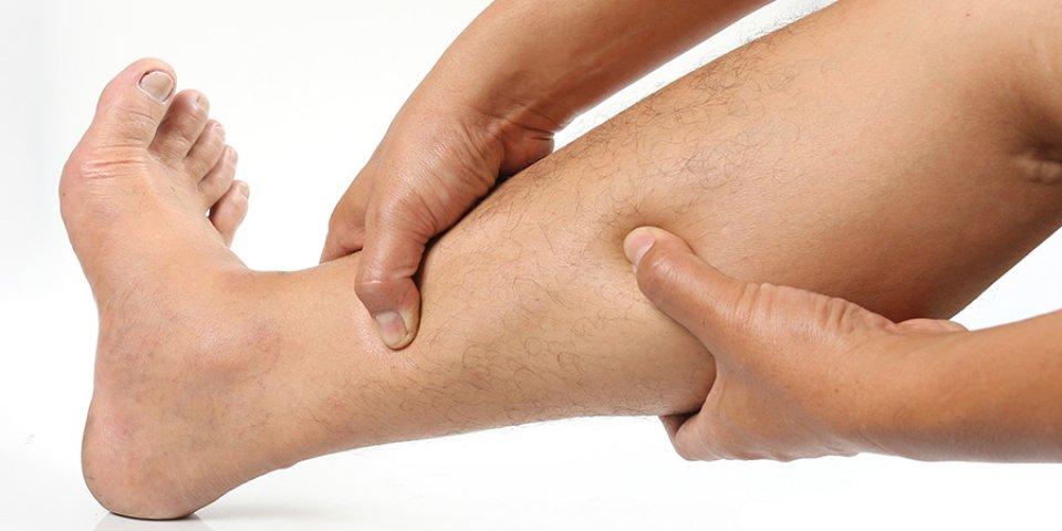 a lábak visszér kezdeti jelei
