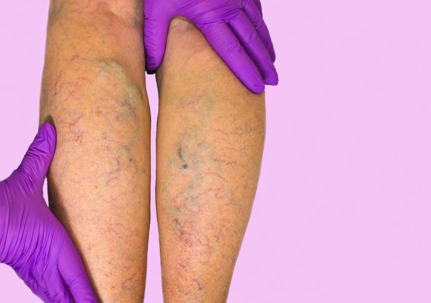 szilárd harisnyanadrág terhes nőknek és visszerek visszérfoltok a lábakon népi gyógymódok