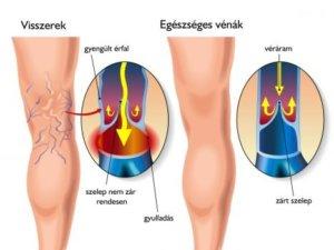 visszér trombózis tünetei