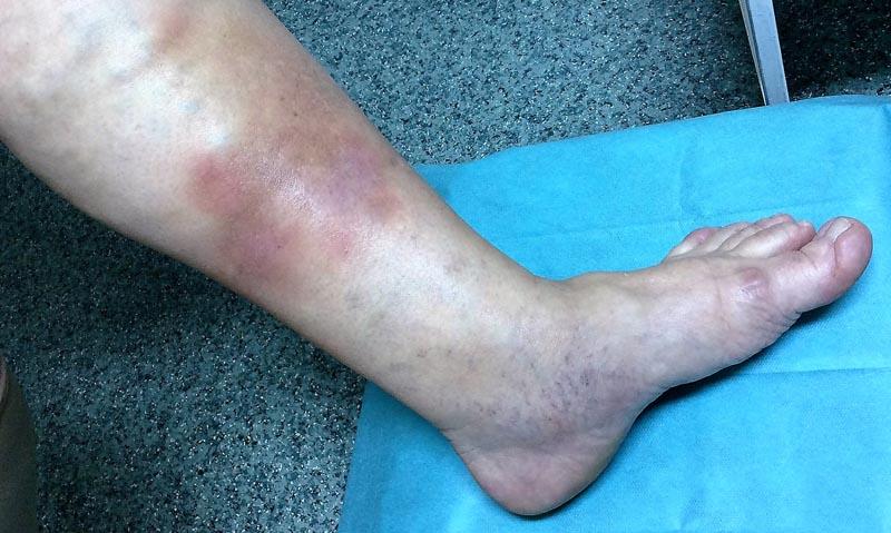 kiütés az alsó lábszáron visszér