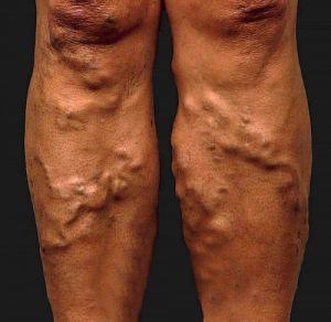 a visszér káros műtét utáni következmények visszér