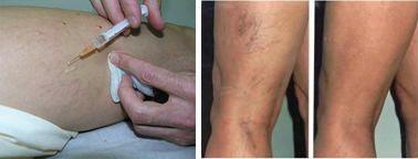 Szkleroterápiás fotók visszér előtt és után. Krém visszerek Lengyelországban