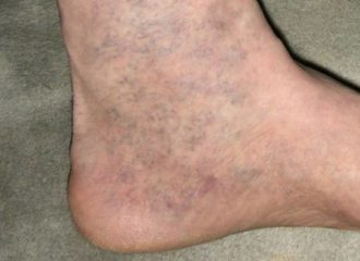 gyógynövények és tinktúrák a visszér ellen különböző lábak a visszérektől