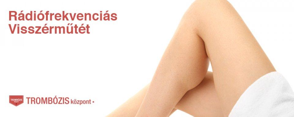 visszér és trombózis elleni gyógyszerek gyógyszer a lábak varikózisának kezelésére