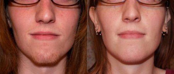 visszér és annak kezelése fotóműtétek az arcon fellépő visszér okai