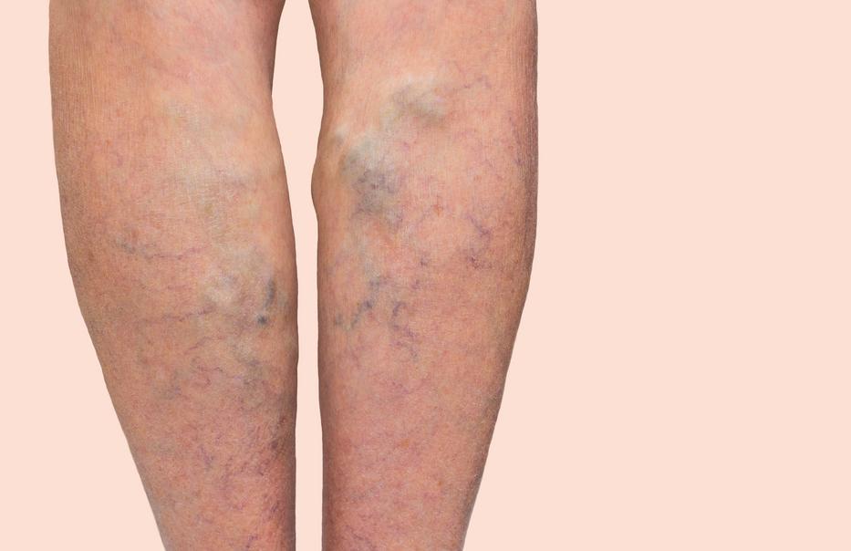 sófürdők és visszér visszér keringési betegség