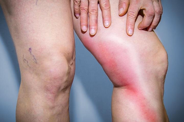 visszér a lábakon kezelés spazmalgon visszérrel