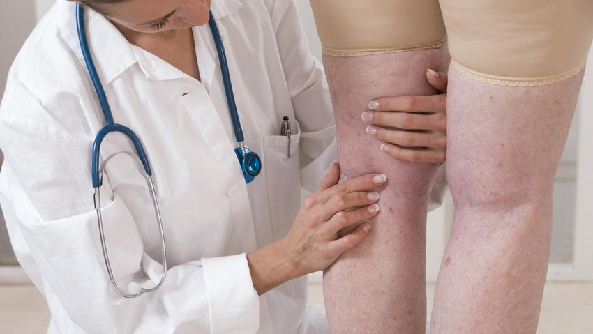 visszér apiterápia kezelése hematológus visszeres terhesség alatt