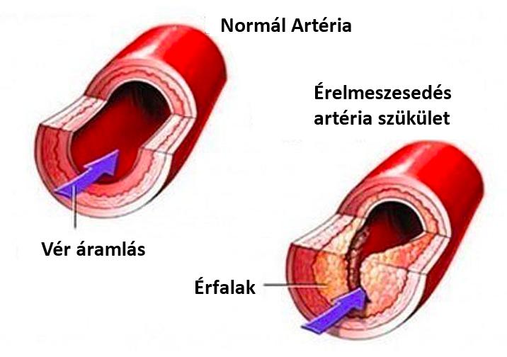 osteochondrosis és visszér