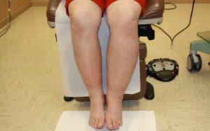visszeres zúzódások a lábakon és a lábakon savanyú visszér