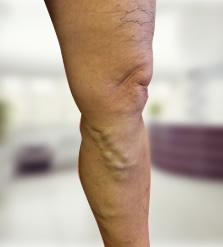 visszér megnagyobbodás mcb 10 a lábak és a visszér bőrbetegségei