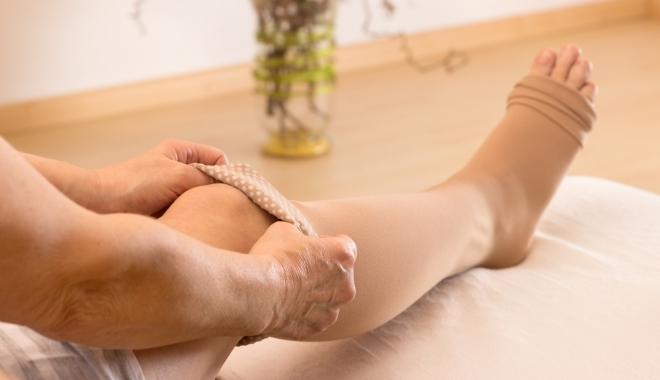 viseljen harisnyát visszerek pszichoszomatika visszér a lábakon