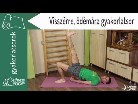 visszér Orekhovo Zuevo visszér belső alternatív kezelés