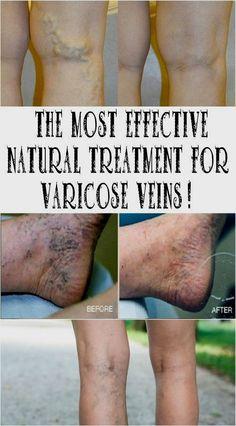 phlebotonic visszér ellen eljárások a visszeres lábakra