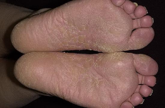 Kékagyag visszér kezelés, Varikozos kúpok a lábak kezelése