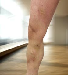 a visszér szkleroterápiája előtte és utána
