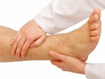 kenőcs a lábak varikózisának kezelésében hogyan kenje meg lábait a visszérektől