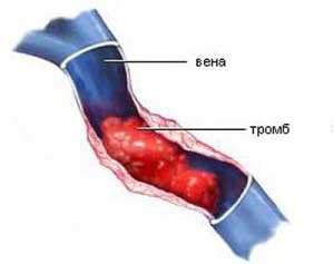 kezelje a sarok sarkantyúját és a varikózisát megkínzott visszér a lábamon