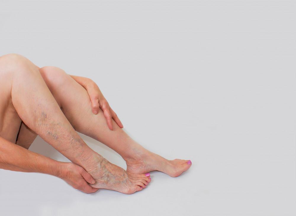 térdig érő varikózus vénák zokni nélkül almaecet visszérből hány százalék