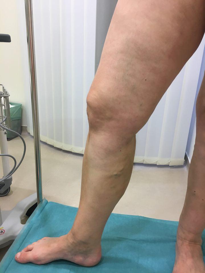 visszér műtét katéter