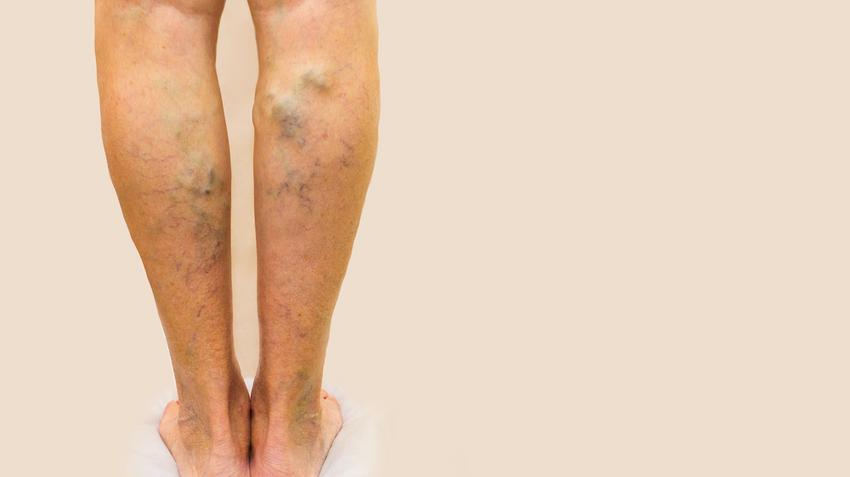a varikózus vénáktól elsötétült lábak)