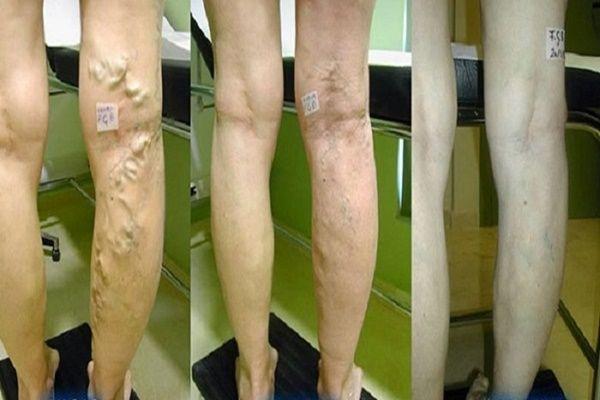 erysipelák a varikózisos lábakon