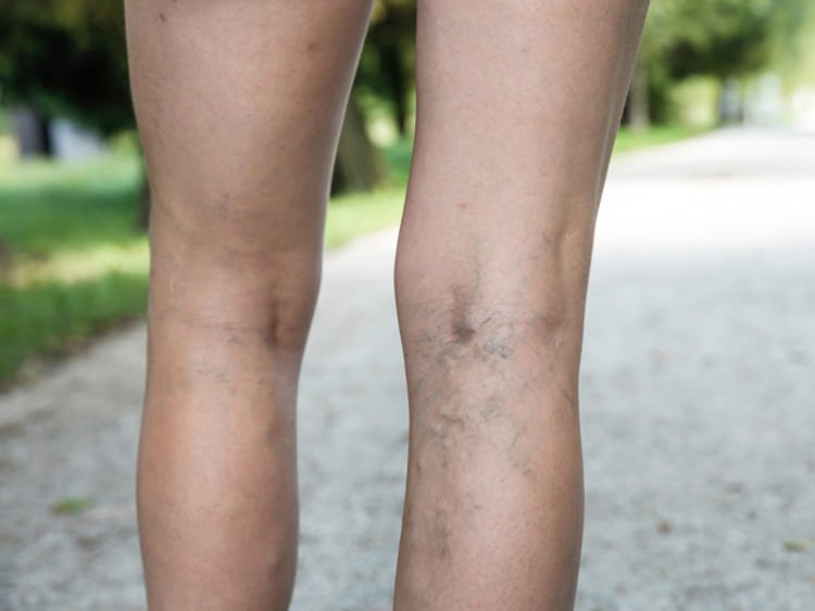 hogyan végezzük a skleroterápiát visszerek esetén