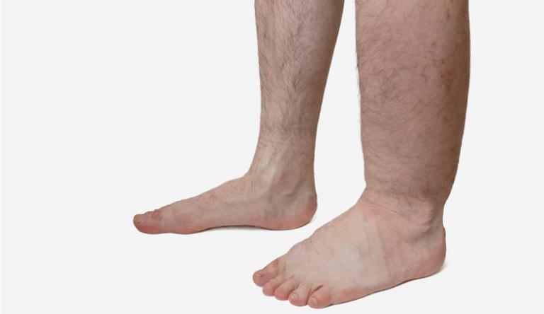 a láb visszerek zsibbadása