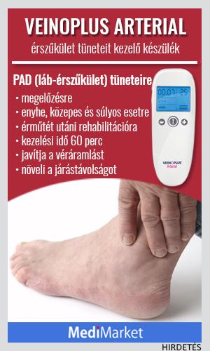 a visszerek költsége és kezelése visszér férfiaknál a lábakon fotó