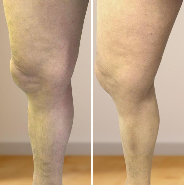 lézeres visszér műtét vélemények visszér a medencében és a lábakban