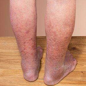 a lábakon lévő visszeres tabletták listája aki eltávolította a visszéreket