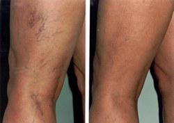 visszér és a lábakon lévő erek kezelésére ellenőrizze a lábát, hogy nincs-e rajta visszér
