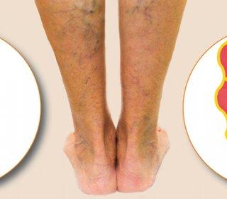 visszér az emlőmirigyen phlebodia vélemények a lábak visszeréről