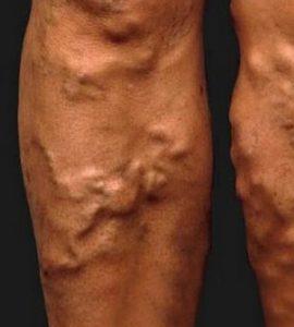 visszér ortopédiája