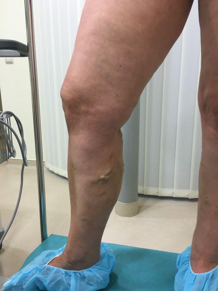 A lábon lévő varikózis növekszik. Varikozus fájdalom, mit kell tenni