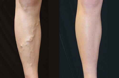 a varikózis miatt komplex a lábak bőrének betegségei visszérrel