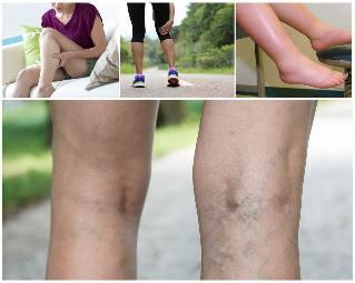 hogyan lehet visszeres lábakat tartani kezelje a visszértágulatot propolissal