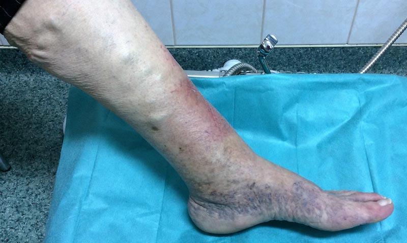 ekcéma visszérrel a varikózis miatt kék lett a lába