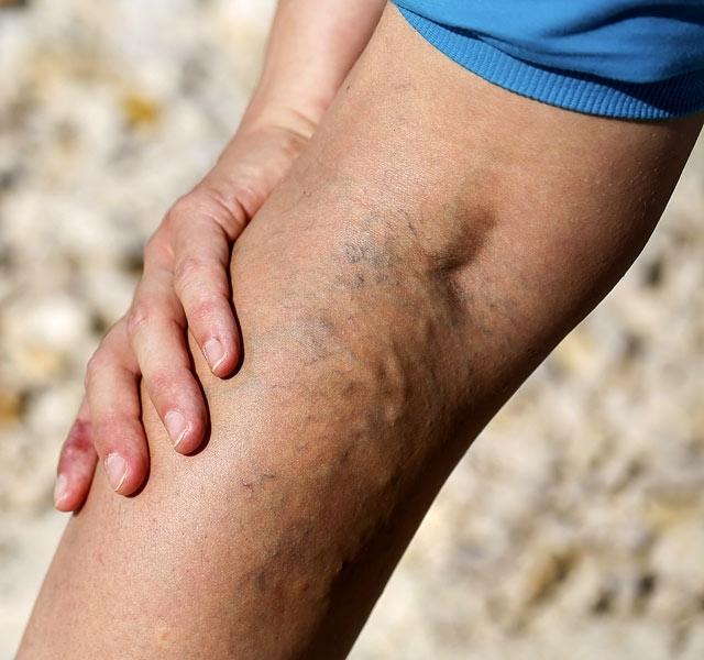 visszeres műtétek Vitebskben visszérbántja a lábakat vélemények