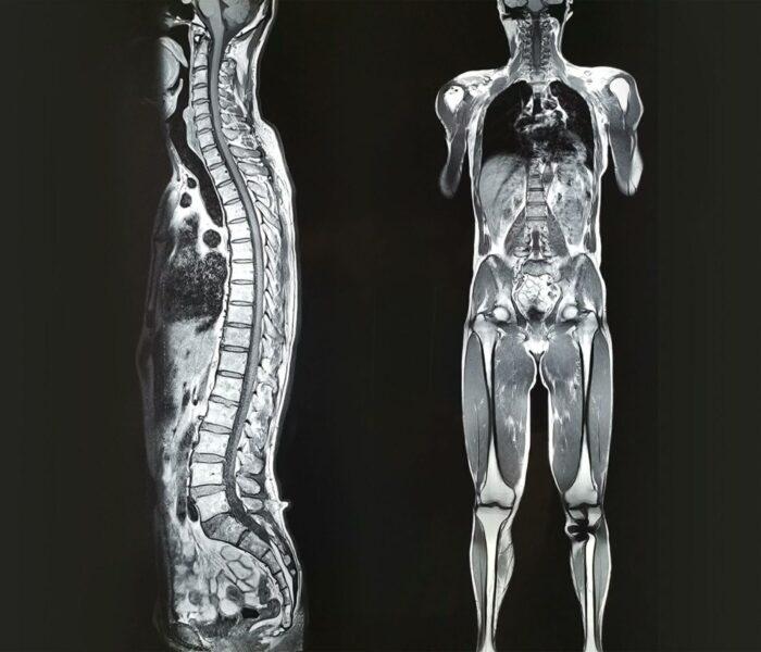 ortopéd térdmagasság a visszér férfiak ára