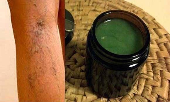 sötét foltok a visszér lábain amikor a visszeres műtét után elengedik