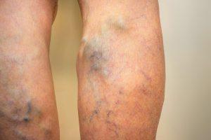 A gyömbér hatása a visszérre - Könnyű lábak