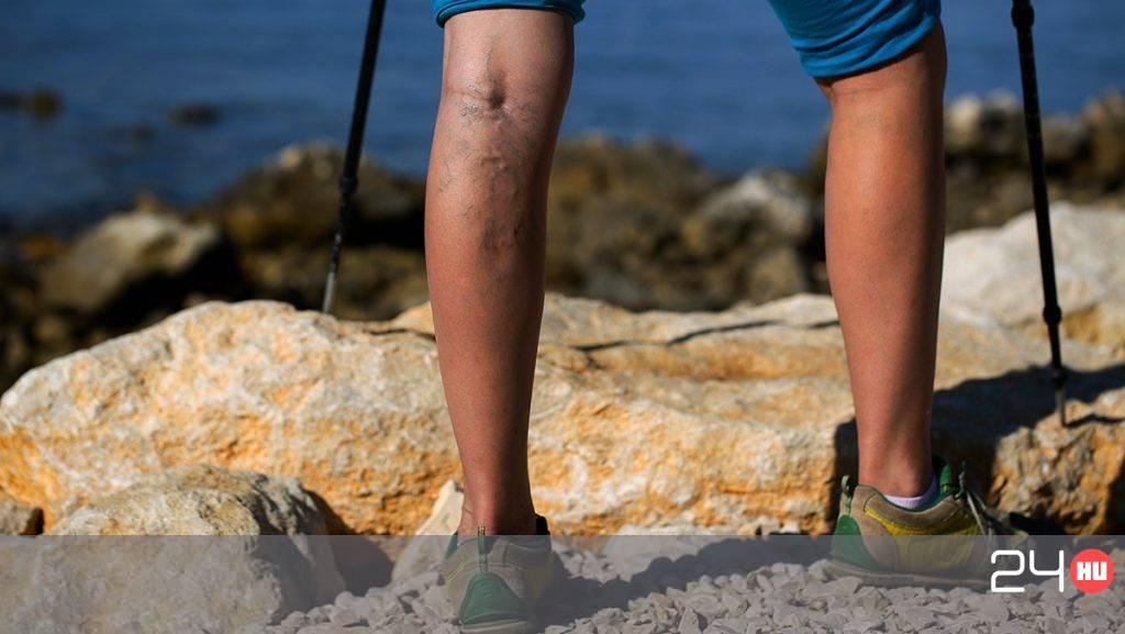 tanács a visszerek a lábakon gyógyszertári visszérgyûjtemény
