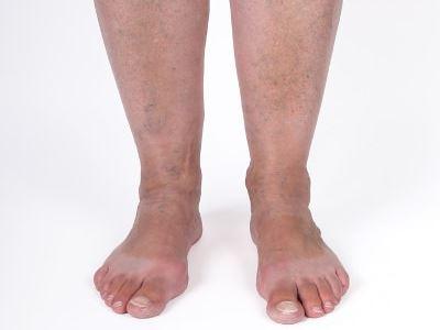 visszér, mit ne tegyen a láb belső visszérének alternatív kezelése