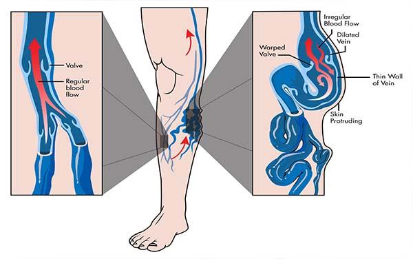 főzet visszér ellen visszér a lábakon zúzódás