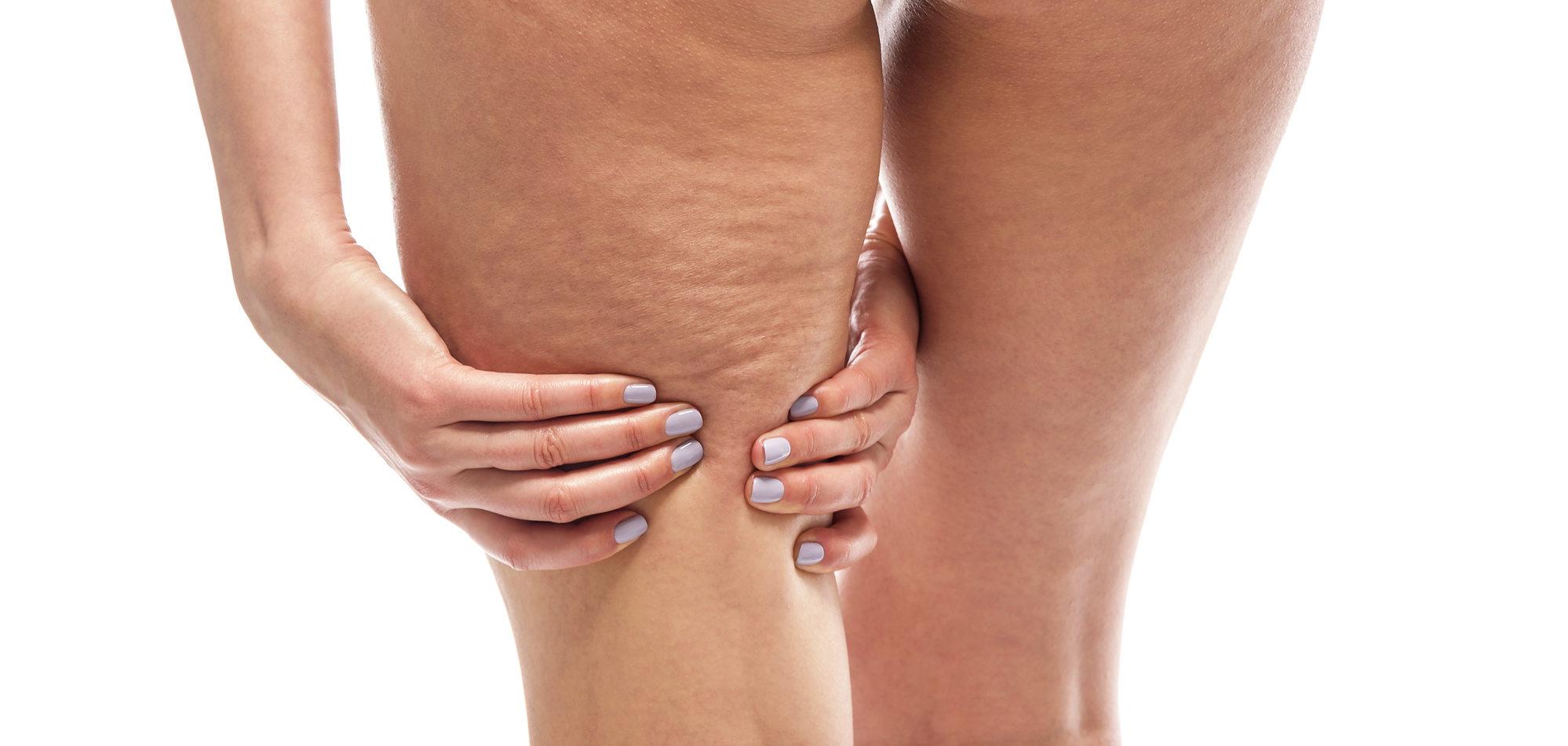 a lábak visszér kezdeti jelei kenőcsök a láb ödéma és visszér ellen
