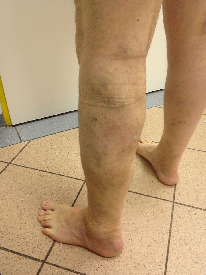 gyógyulási időszak a visszeres műtét után retikuláris véna visszér