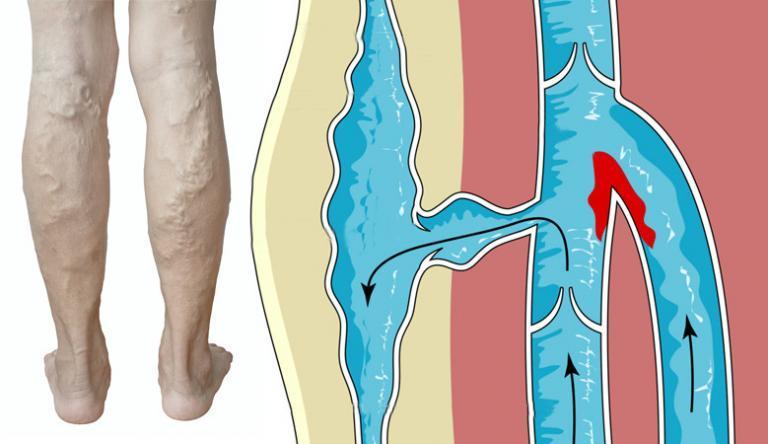 combkötés visszerek esetén nagyon duzzadt lábak nem visszerek