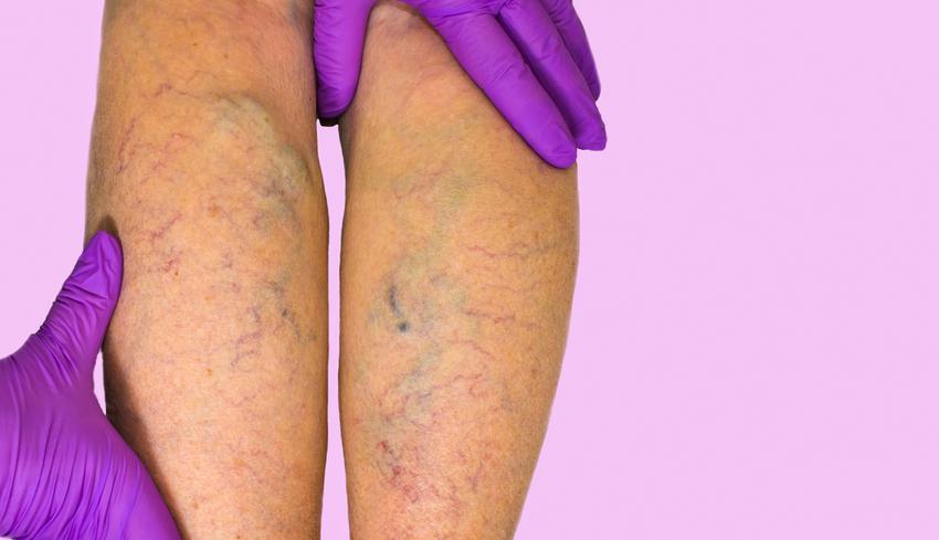 A varikózisos vénák megkeményedése, A vénák betegségei